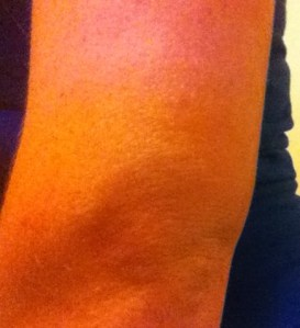 That is the back of my arm swelling up over my elbow...feels great.