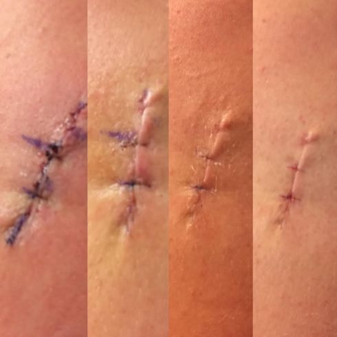 Progression of healing: Days 1, 5, 10, and 14 (the last one was right after my stitches were removed)