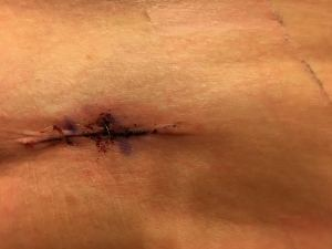 hip-skin-cancer-spot